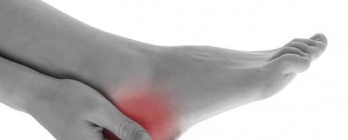 Treatment of Heel Pain Plantar Fasciitis